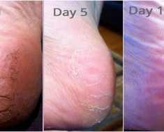 Never Suffer From Cracked Heels Tips