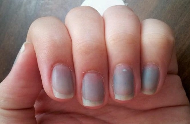 What-Your-Nails-Can-Tell-You-About-Your-Health-Bluish-Nails-1
