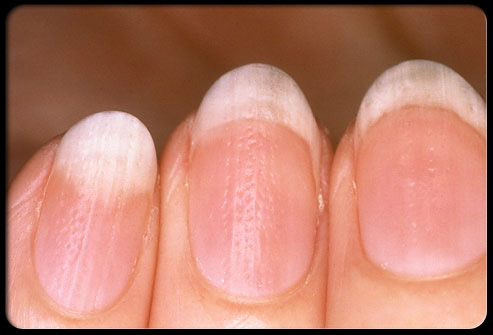 What-Your-Nails-Can-Tell-You-About-Your-Health-RIPPLED-NAILS