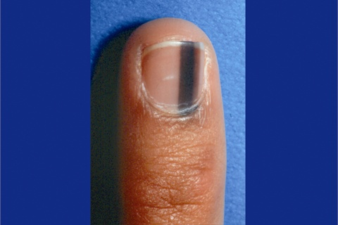 What-Your-Nails-Can-Tell-You-About-Your-Health-dark