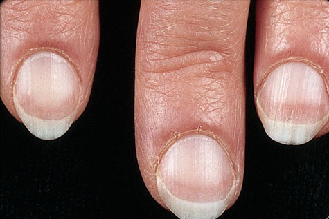 What-Your-Nails-Can-Tell-You-About-Your-Health-pale-nail
