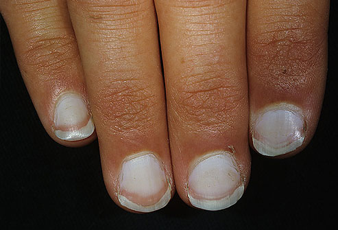 What-Your-Nails-Can-Tell-You-About-Your-Health-white-nail