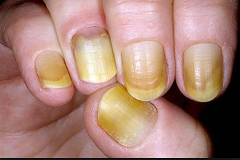 What-Your-Nails-Can-Tell-You-About-Your-Health-yellow-nail